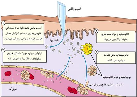 واکنش دستگاه ایمنی ذاتی نسبت به عفونت